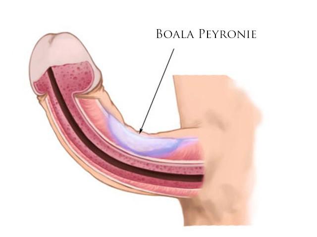 erecție și durere în gât