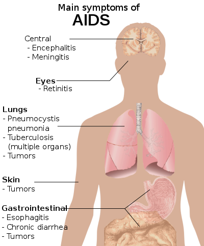 Simptomele HIV pe penis)