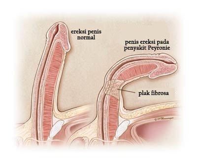 penisul spart cum se tratează)