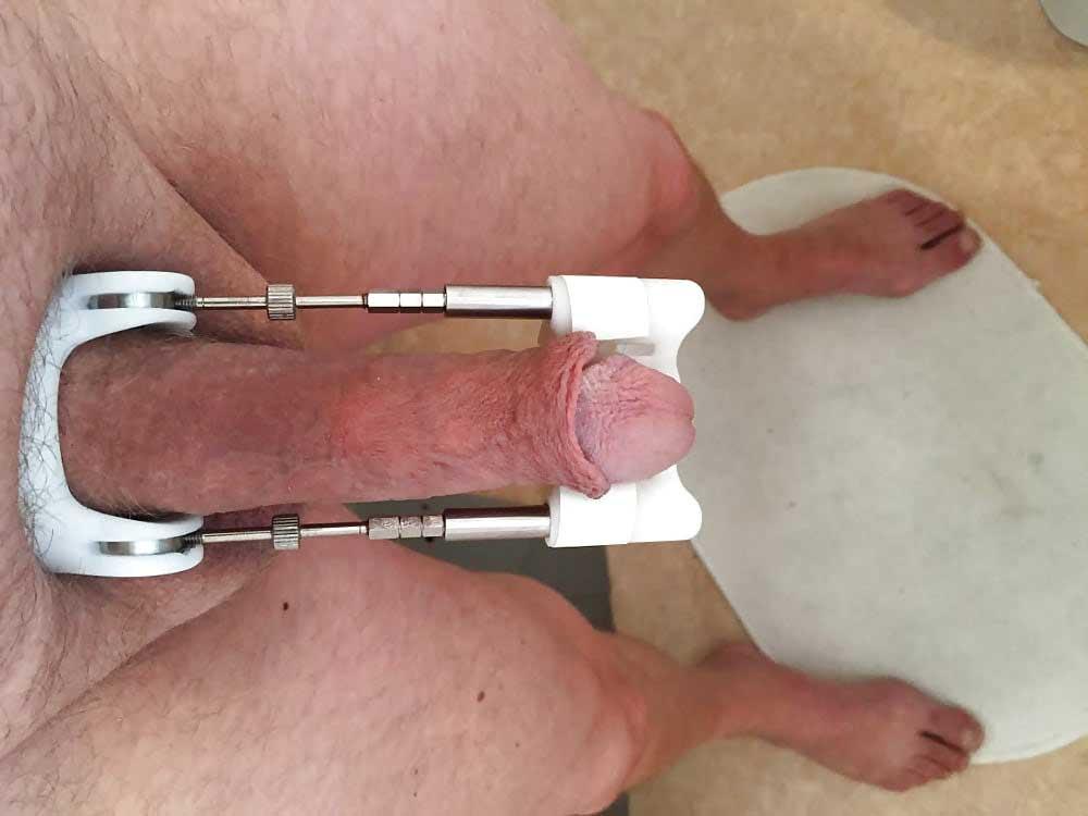 Extensor de grosime penis