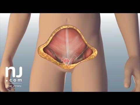 cum se restabilește o erecție pentru cineva peste 50 de ani ce penisuri mari