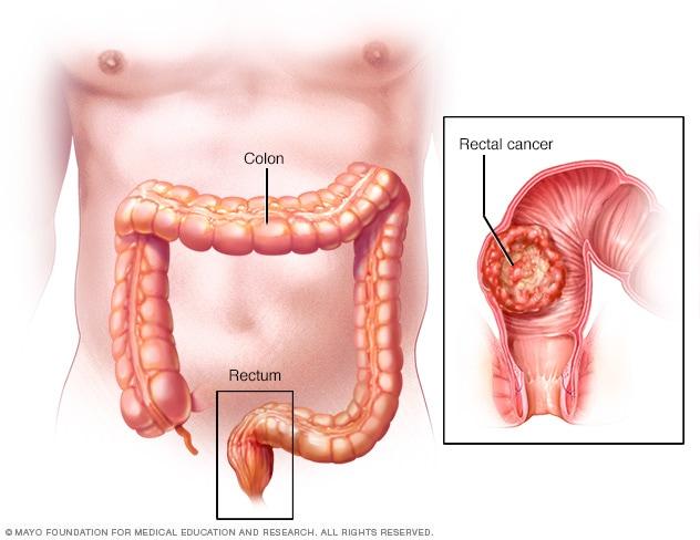 neoplasm al penisului