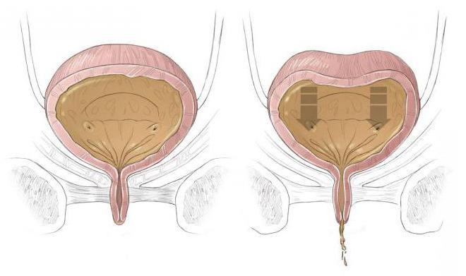 erecție involuntară la bărbați
