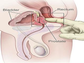 fără erecție din masajul prostatei