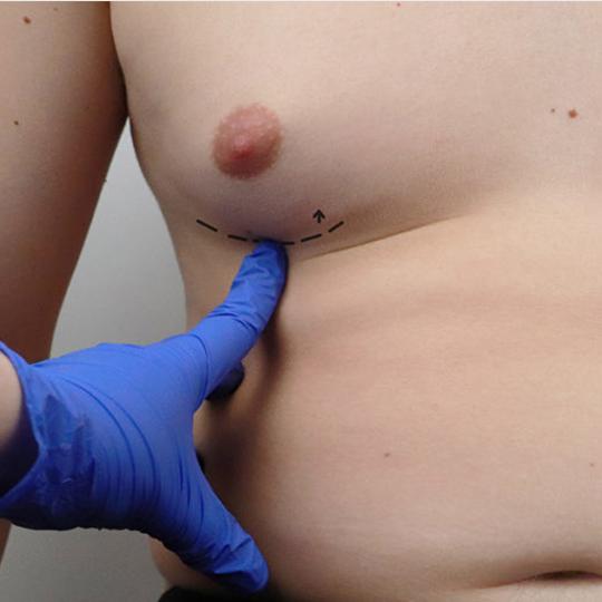 fără erecție după operația rectală)