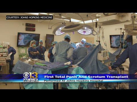 chirurgie de restaurare a penisului)