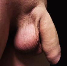 penisul nu este expus