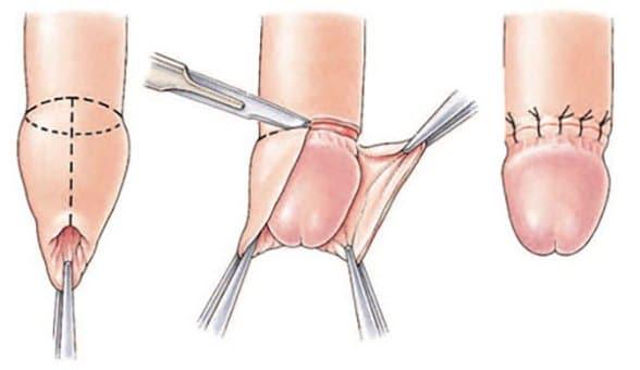 îngrijirea penisului după operație)