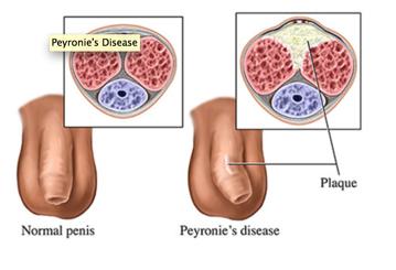 penis sclerodermic)