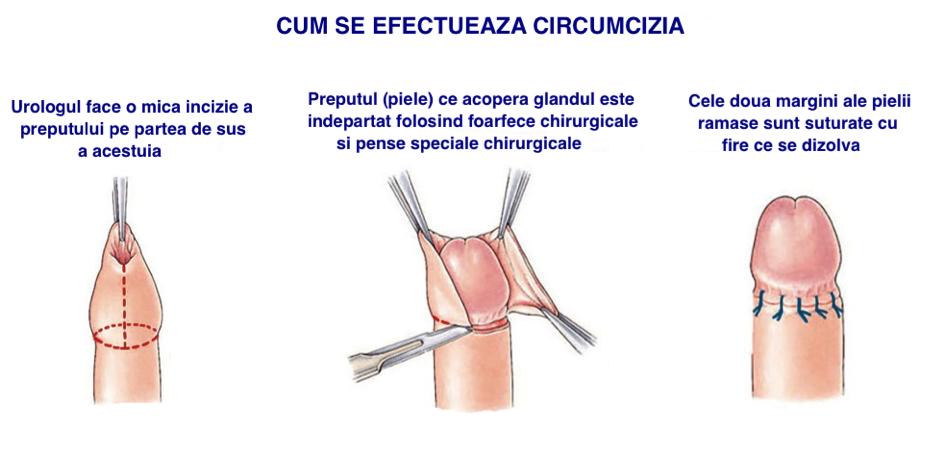 posibile boli ale penisului