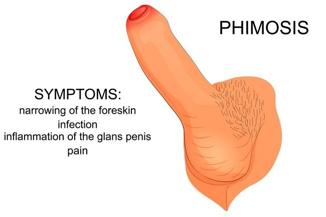 patologie penis