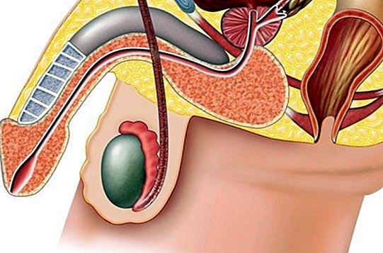 scăderea testiculelor și a penisului ce să folosiți pentru a avea o erecție bună