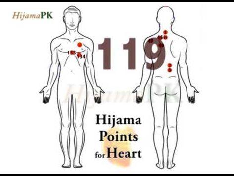 erectia punctelor hijama)