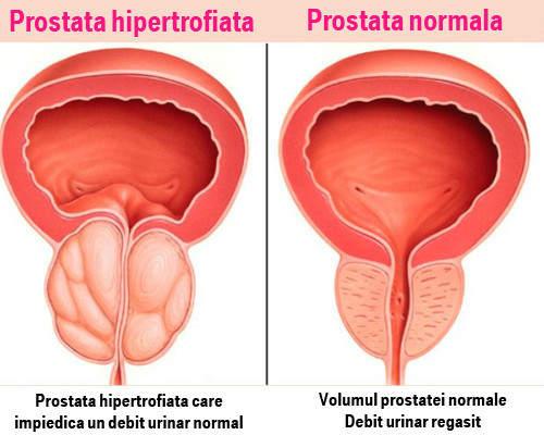 erectie prostanormala