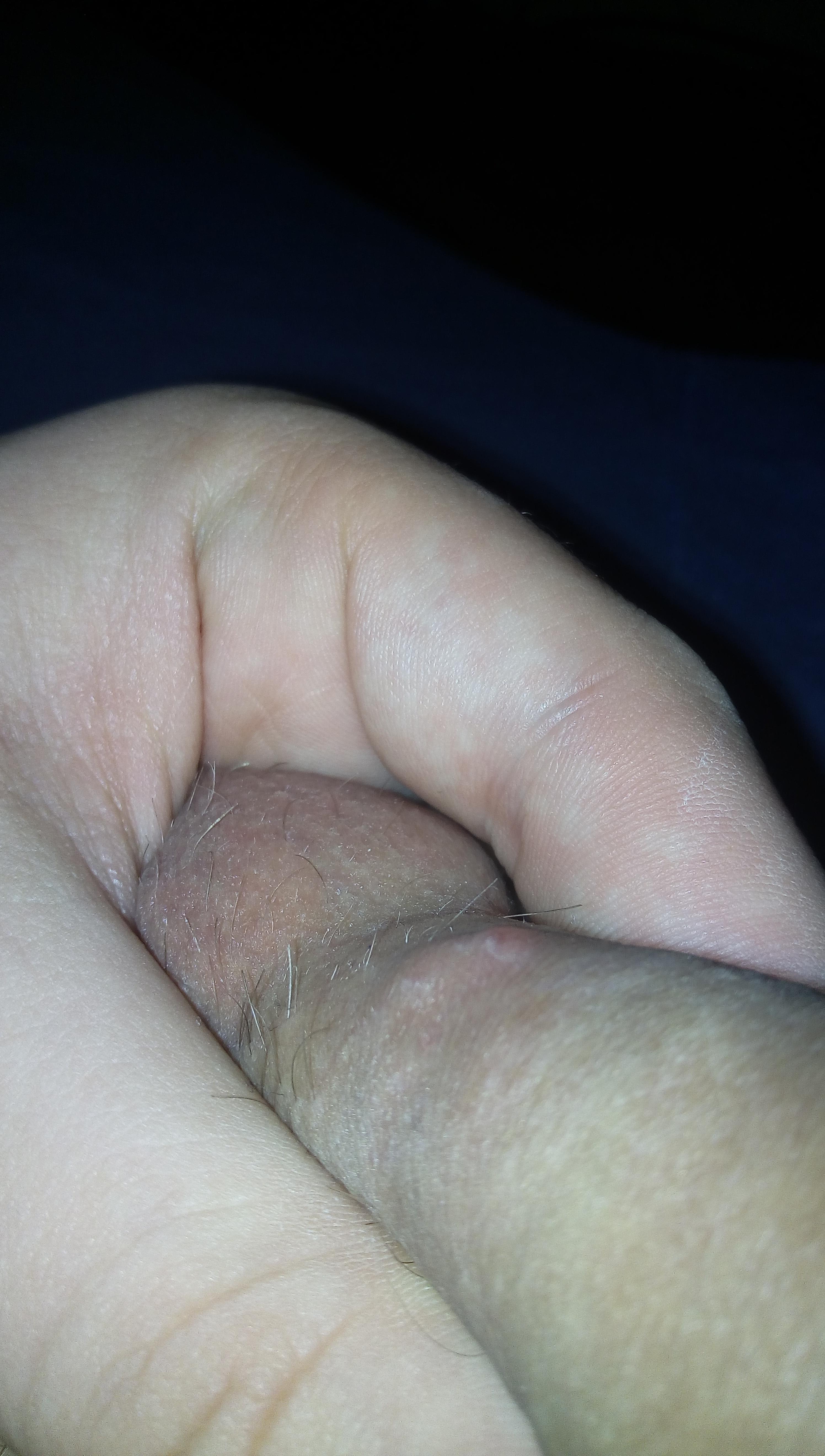 la baza penisului