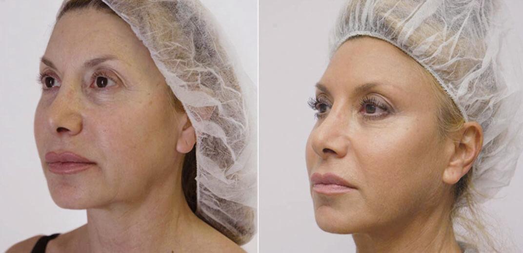 Facelift - corecţia ovalului feţei