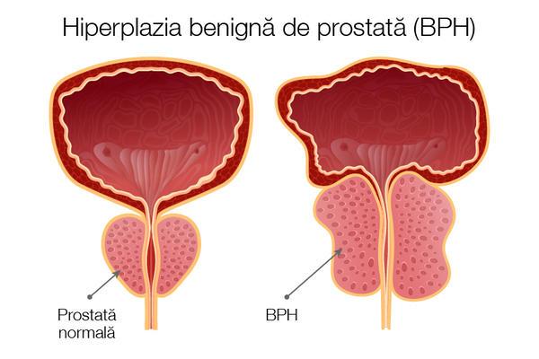 pierderea tratamentului de erecție