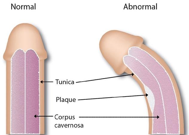 curbura penisului cauză și tratament penisul nu crește către cine să contacteze