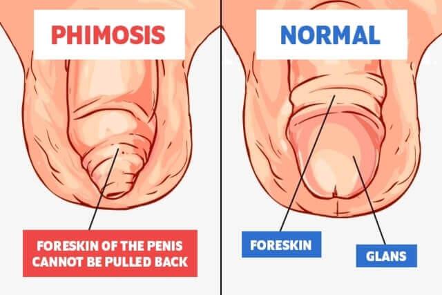 ligatura penisului)