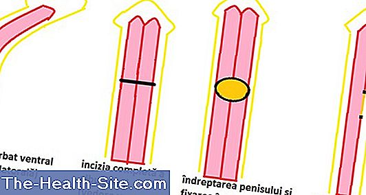 diferite lungimi de penisuri