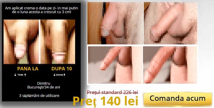 Măriți penisul | go2dent.ro
