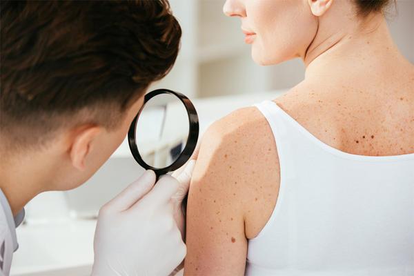 Pierderea mirosului ca urmare a infecției cu COVID-19