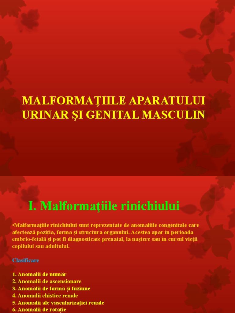 anomalie congenitală a penisului)