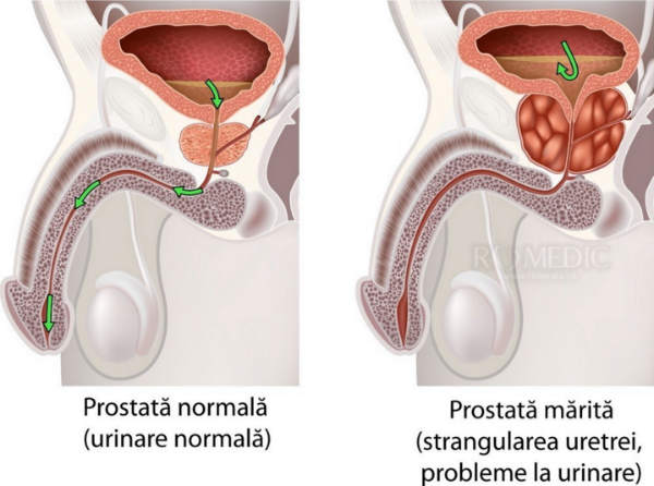 problemă cronică de erecție a prostatitei)