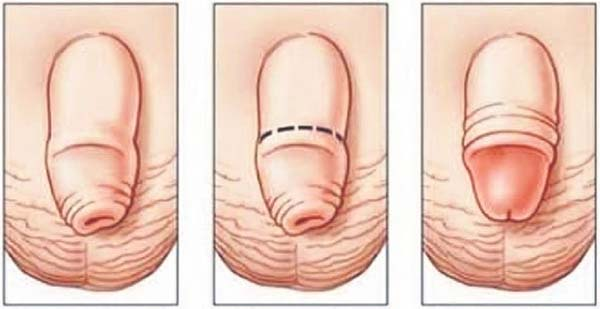 trebuie să deschid penisul