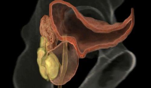 xp prostatită și erecție