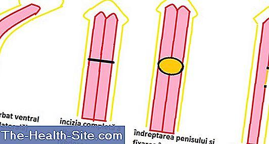 dimensiunea anormală a penisului