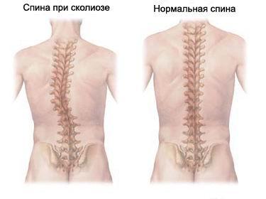 Despre herniile discale lombare - Terramed