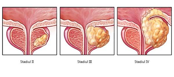 prostatita erectie cronica a prostatitei)