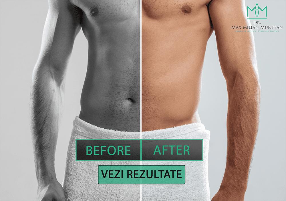 înainte și după penis)