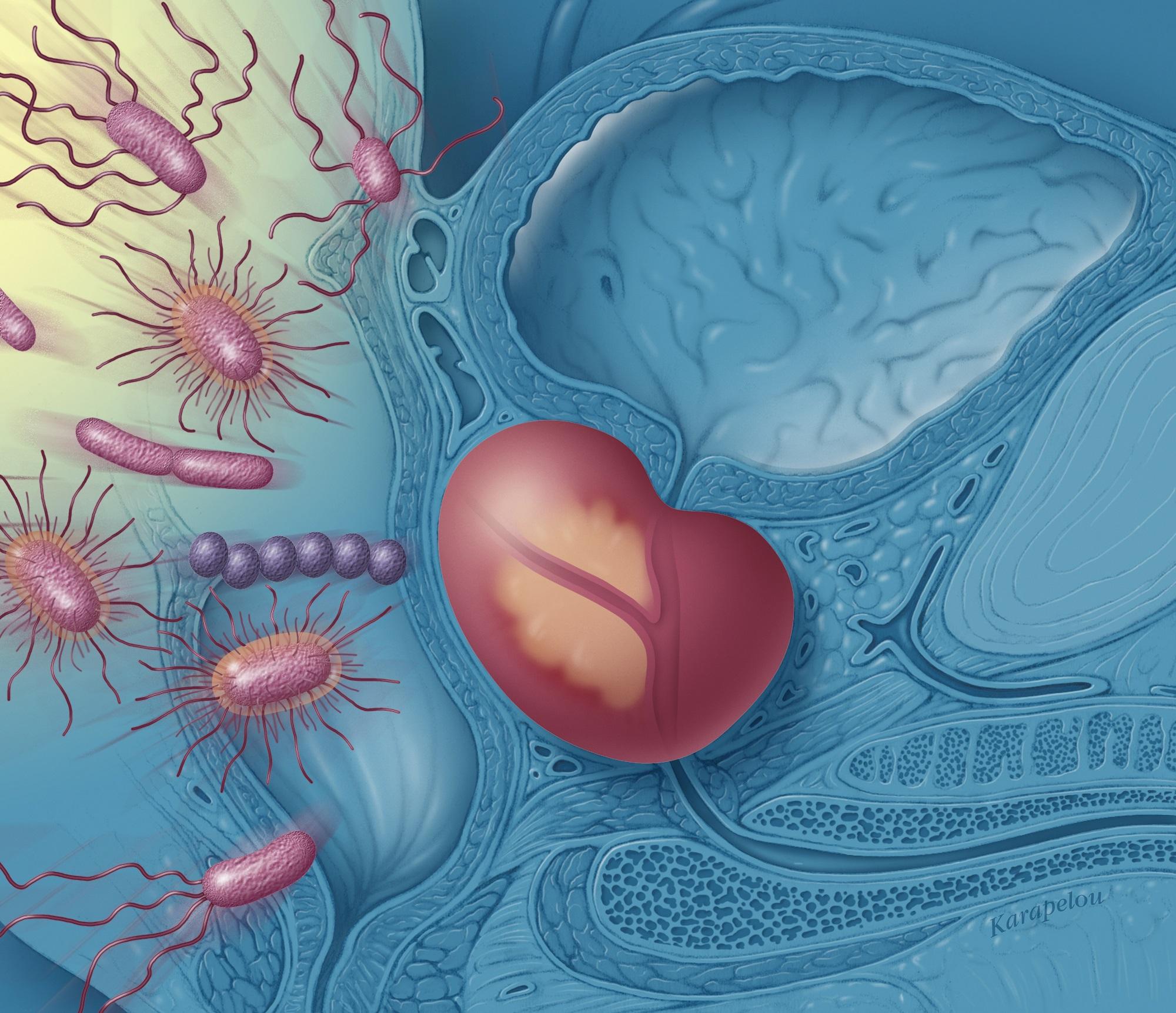 intestinele în timpul erecției