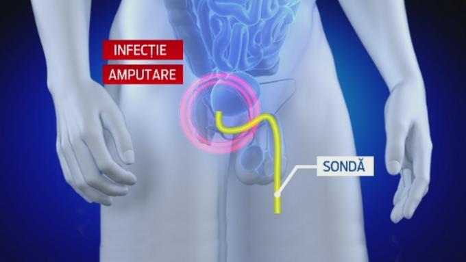 montarea penisului