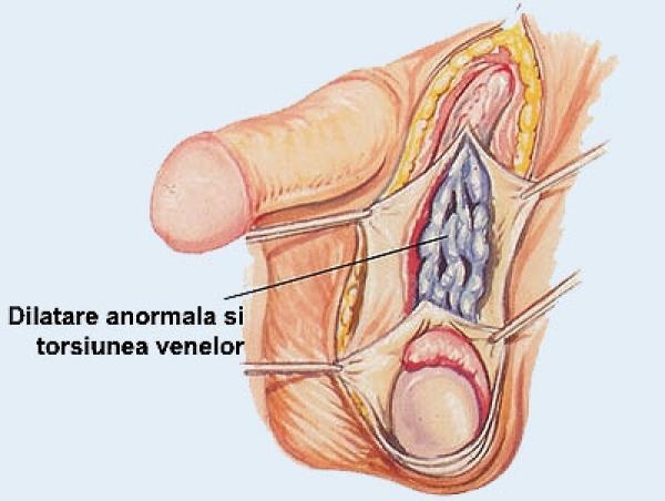 penisul și testiculele sunt reci)