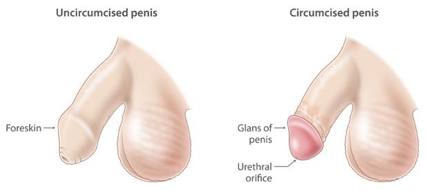 penisul meu după operație