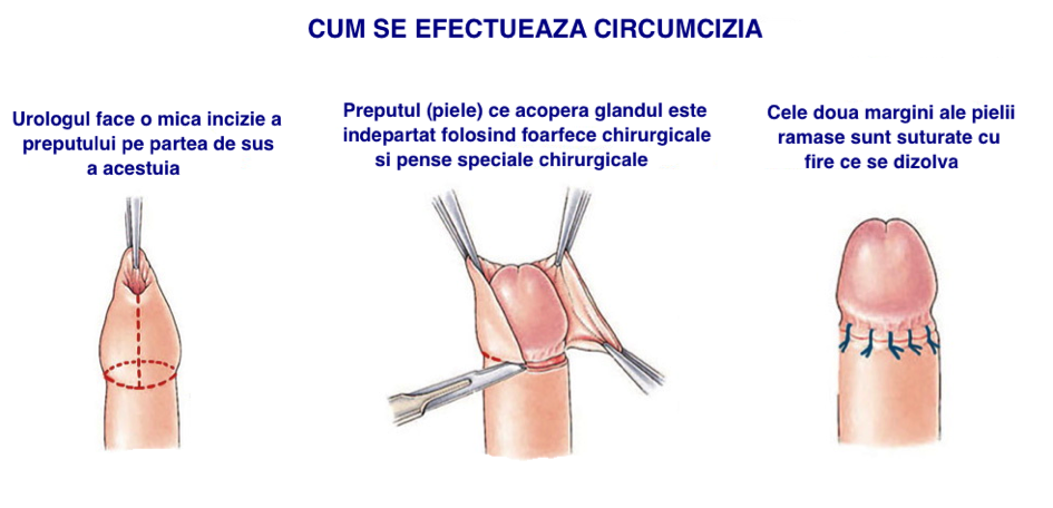 penisuri de bărbați adevărați re- acționează erecția
