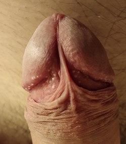 un bărbat are E. coli pe penis)