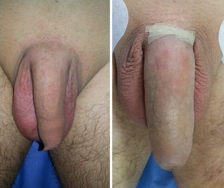 penis în stare normală și erecție)