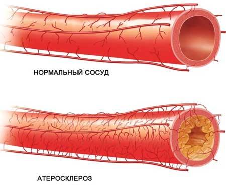 Ce se injectează în picăturii în tratamentul alcoolismului