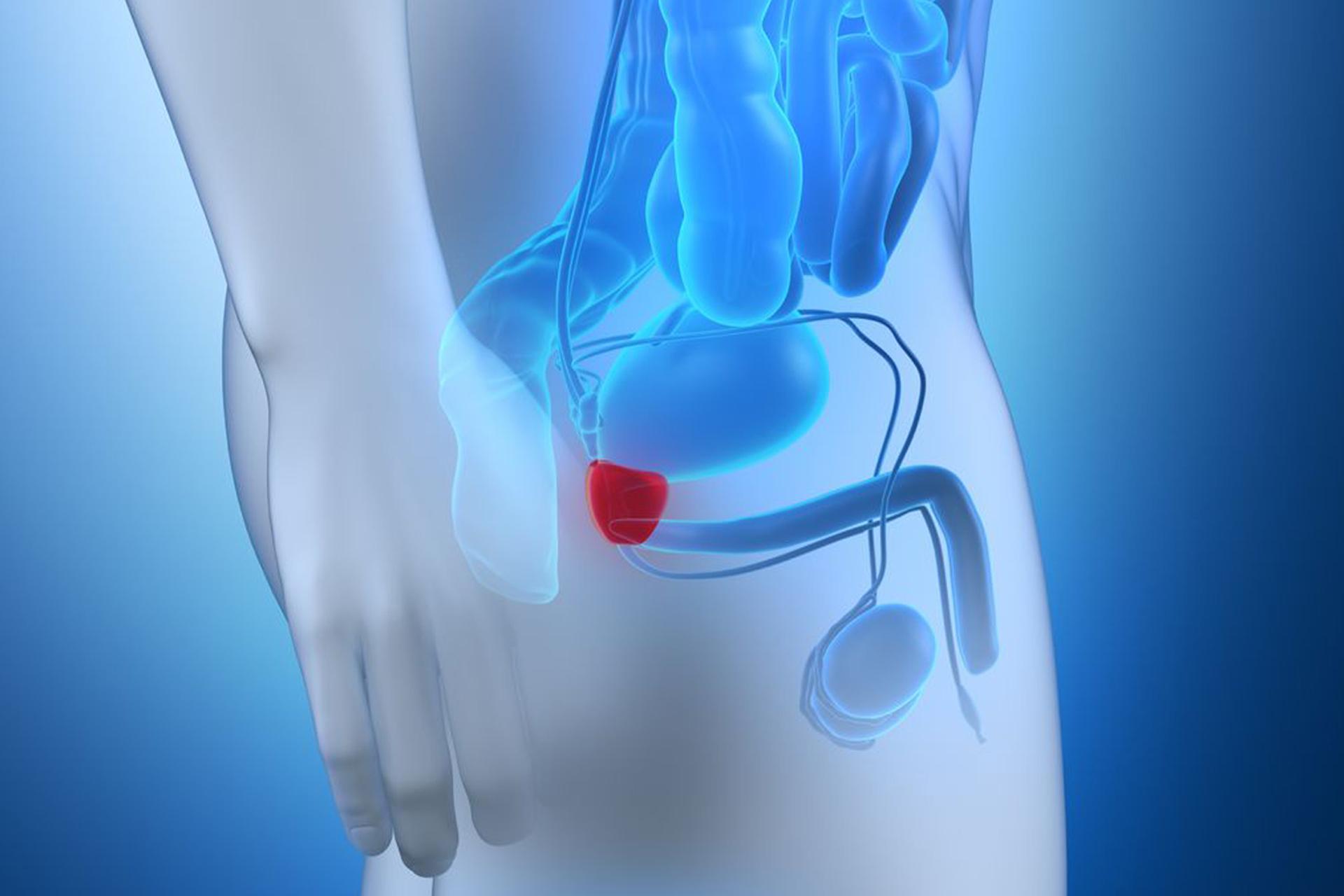 erecția sucului de prostată