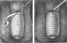 penis învinețit cum se tratează mărirea penisului prin metoda agățării